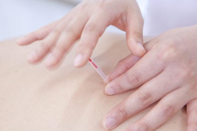 旭川で鍼灸院に体の痛みや不調を相談するなら